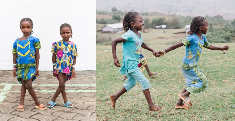 Girls treated by Mercy Ships